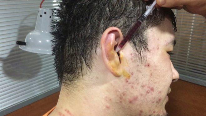Kırılmış güreşçi kulağı tedavisi kanını alma.   Yeni Videolar için takip edin