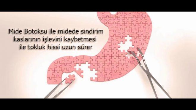 Antalya Mide Botoksu Fiyatları 2019