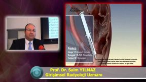 Miyom Embolizasyonu Adenomiyozis Avantajları Nelerdir Kadınlarda Miyom Tedavisi