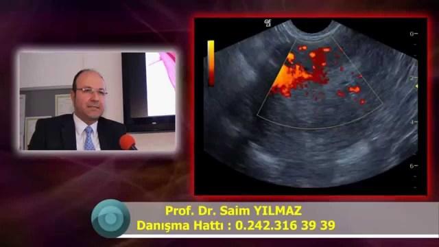 Miyom Embolizasyonu Adenomiyozis Rahimde Miyom Ameliyatsız Tedavisi