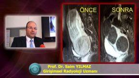 Ameliyatsız Miyom Tedavisi Miyom Embolizasyonu Adenomiyozis Tedavisi Uzmanı Nedir Nasıl