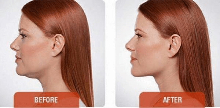 Austin Kybella Injectables | Double Chin Treatment by Dr ...