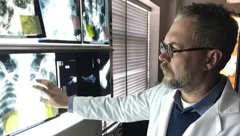 man looking at xrays of a human chest