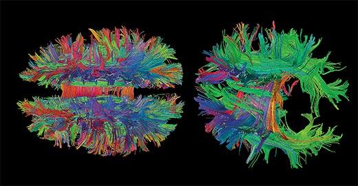 2-brains-magnetic-resonance-imaging-520