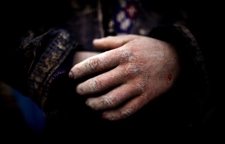 Τα ταλαιπωρημένα χέρια ενός παιδιού στο Αφγανιστάν. Εργάζεται καθημερινά, 8 π.μ. έως 5 μ.μ., σε εργοστάσιο τούβλων.Η παιδική εργασία είναι συνηθισμένη στα εργοστάσια τούβλων. Οι γονείς εργάζονται ως εργάτες, και στην απελπισία τους για να κερδίσουν περισσότερα χρήματα, χρησιμοποιούν τα παιδιά τους ως βοηθούς.