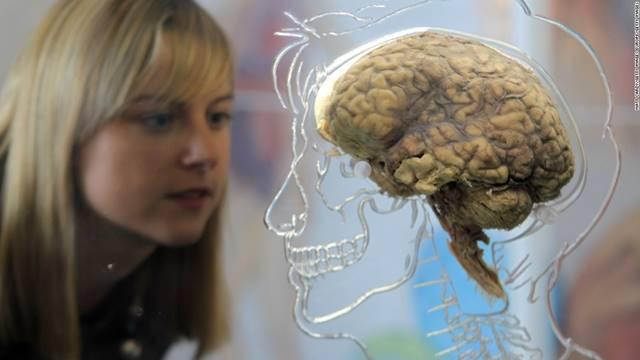 real-human-brain-getty-super