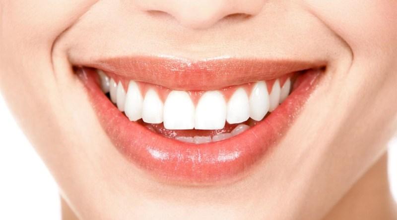 أطعمة مفيدة تعمل على تبييض الأسنان