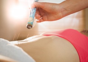 I Tried Acupuncture For My Endometriosis Pain