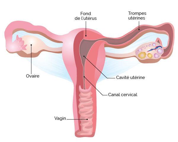 Réduire les sources d'œstrogènes pour soigner un fibrome sans chirurgie