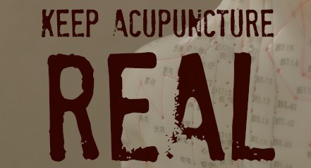 http://www.liveoakacupuncture.com/dry-needling