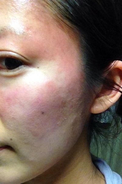 花粉症皮膚炎1