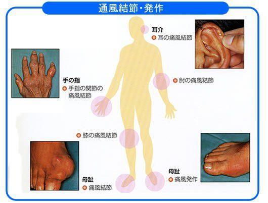 痛風の症例