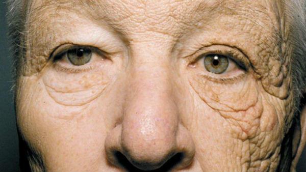 光老化した顔面