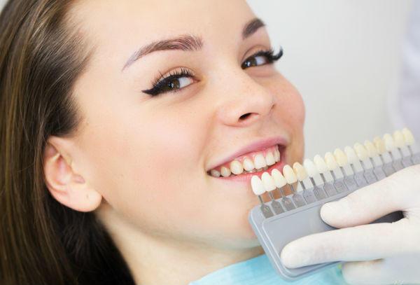 歯医者さんで歯を白く