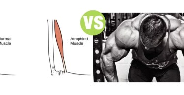 Difference Between Atrophy and Hypertrophy