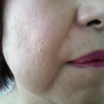 老け顔に見えるほうれい線を消す方法とは?マイナス5歳を目指しましょう♪