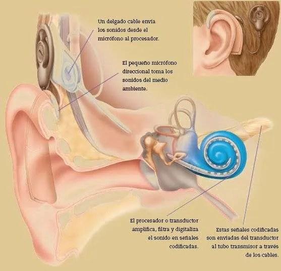 esquema implante coclear