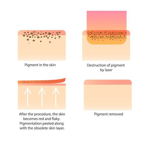 small resolution of laser pigment skin diagram
