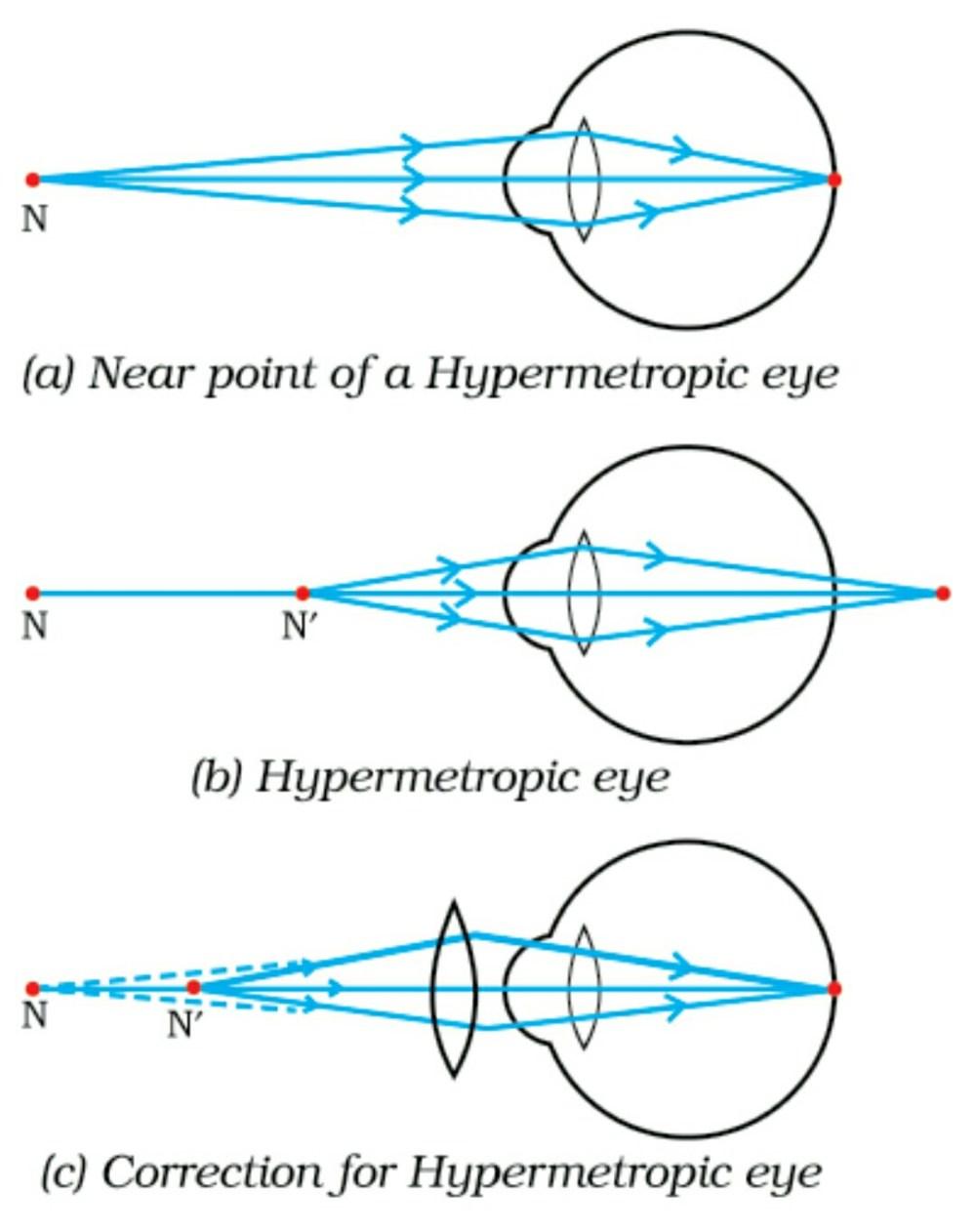 medium resolution of the human eye