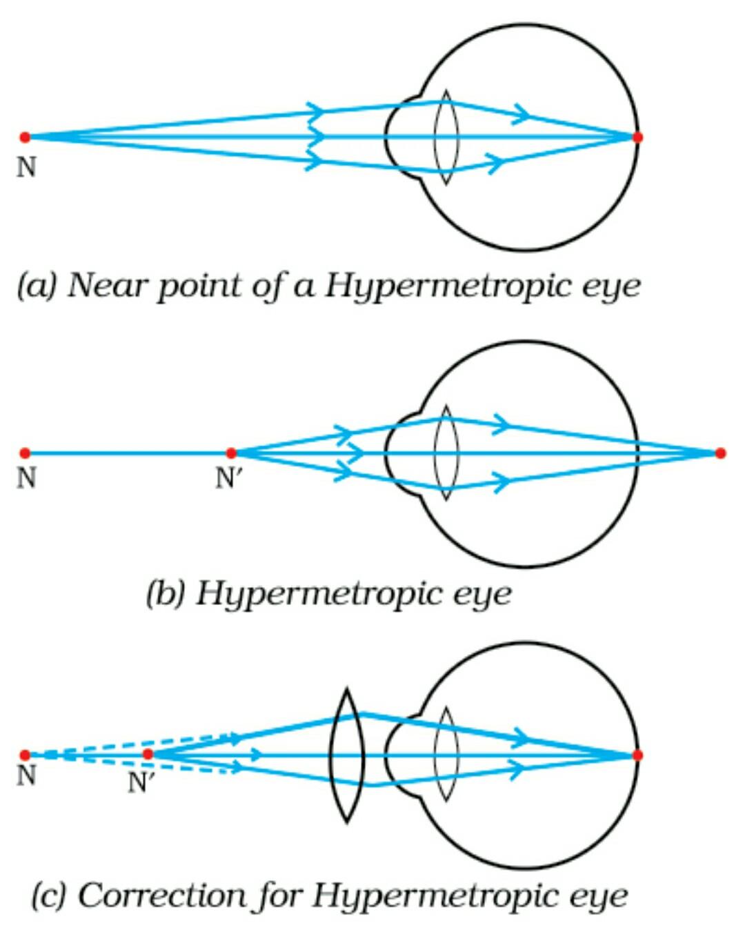 hight resolution of the human eye