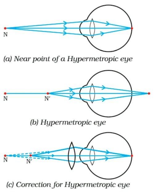 small resolution of the human eye