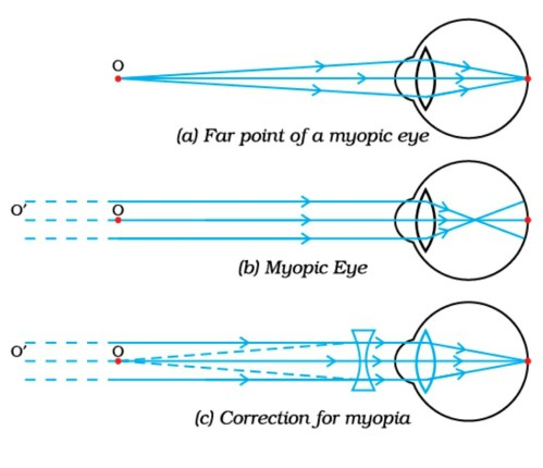 small resolution of vision defect hypermetropia and correction with concave lens