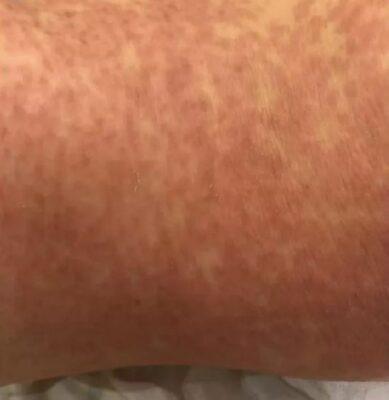 身上突然長滿小紅點,皮膚痕癢過敏,我們應該怎麼辦?   ApexHealth