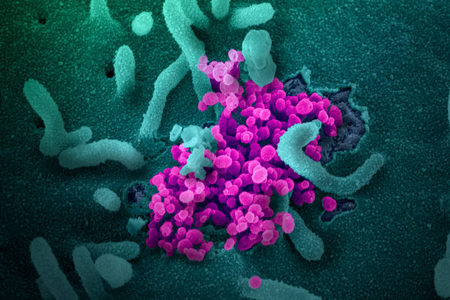 Antibodies from COVID-19 survivors could be used to treat patients ...