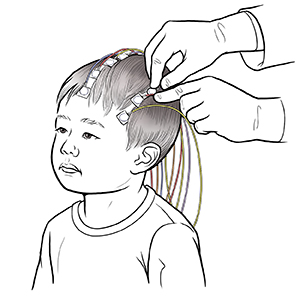 When Your Child Needs an Electroencephalogram (EEG