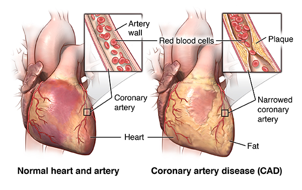 diagram of a heart bypass graft off road light wiring without relay angioplasty and stent placement for the - health encyclopedia university rochester ...