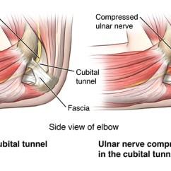 Ulnar Nerve Diagram Fuel Sending Unit Wiring Cubital Tunnel Syndrome
