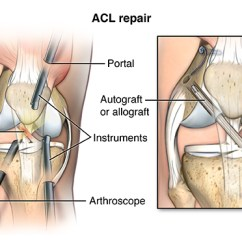 Front Leg Ligament Diagram Asco 920 Contactor Wiring Knee Repair Health Encyclopedia University Of Rochester Pmuscsk 20140312 V0 001 Generally