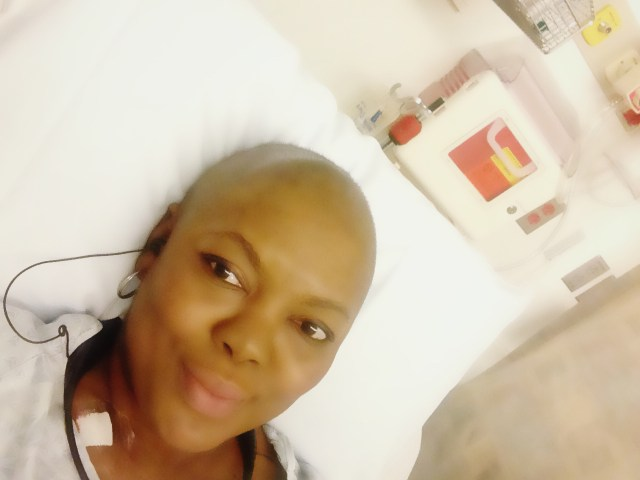 Breast cancer- BAld head after chemo