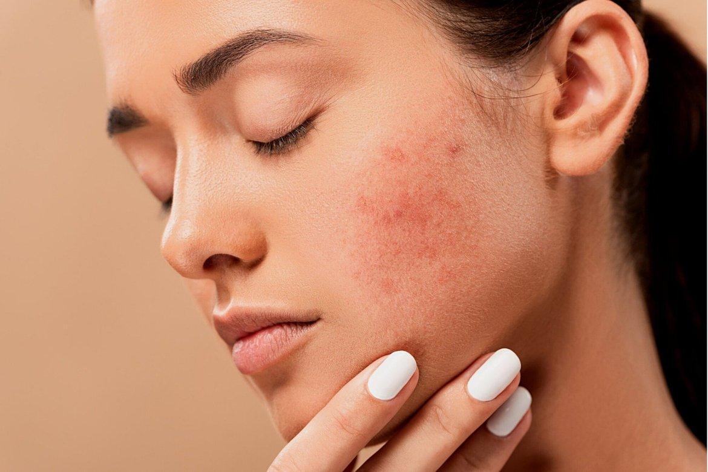 recurring acne