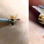 L'apithérapie ou l'acupuncture avec des abeilles