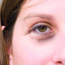 Problemzone Augen – Was hilft gegen Augenringe?