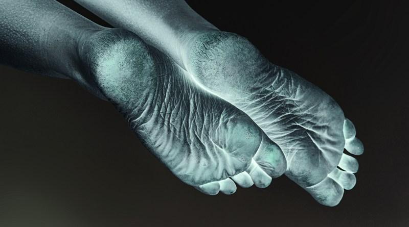 Schöne und gesunde Füße