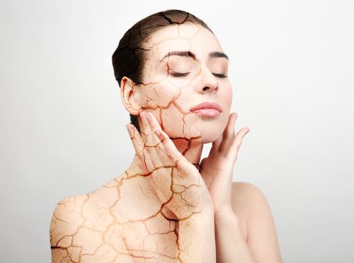 Frau mit trockener Haut