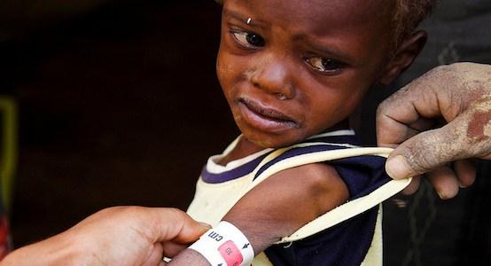 the-dying-children-of-yemen
