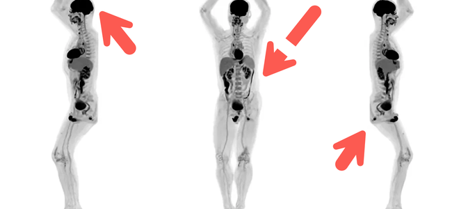 first-human-images-revealed-from-world8217s-only-full-body-3d-scanner