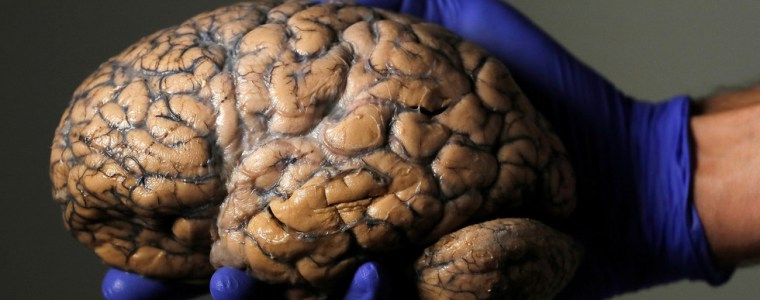 worlds-1st-remote-brain-surgery-via-5g-network-performed-in-china