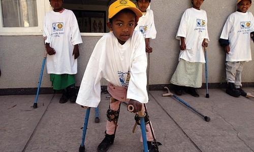 university-of-california-admits-polio-vaccine-causes-most-polio-cases