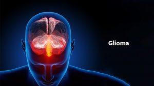 hoge-incidentie*-hersentumoren-in-frankrijk,-gelinkt-aan-straling-en-de-rol-van-het-icnirp.