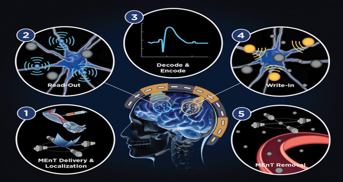 magnetismus-spielt-eine-schlusselrolle-in-der-forschung-zur-entwicklung-einer-gehirn-maschine-schnittstelle-ohne-operation.