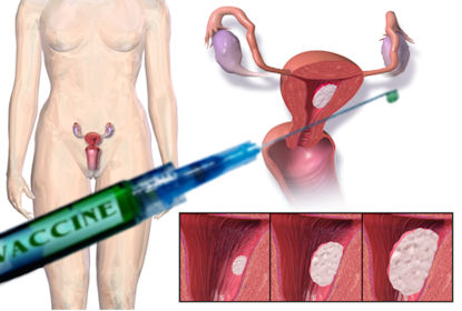 amerikaans-lab-constateert-20-voudige-toename-baarmoederkanker-na-start-covid-injecties