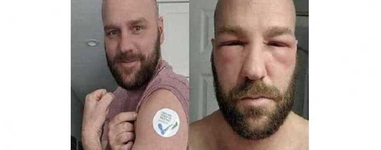 """verpleegster-klokkenluidster-slaat-alarm-over-vaccinaties:-""""dit-is-echt-schokkend"""""""