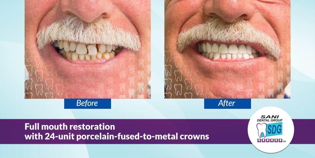 Porcelain Fused to Metal Crowns PFM Crowns