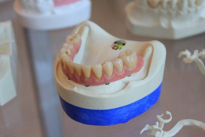 dentures on a case