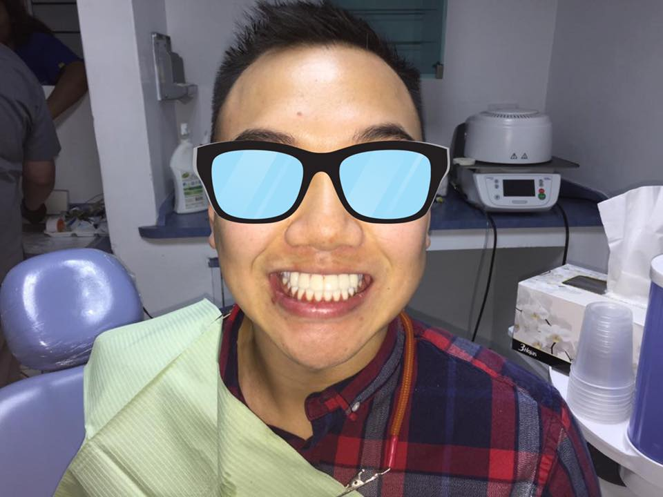 Happy patient at Ideal Dental Center in Mexico City