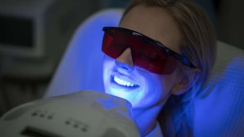 teeth whitening in Los Algodones